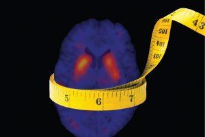 Elsemarieke van de Giessen - The Obese Brain - Amsterdam Academic Medical Center