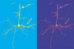 Melissa Barry - Pop-Art Cortical Motor Neuron - University of Otago