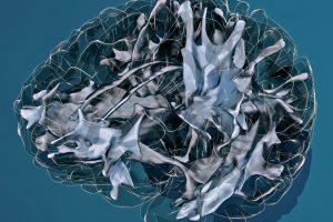 Marius de Groot - The hidden wiring of our brain - Erasmus Medical Center