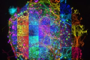 Albert Folch - Paul Klee's retina - University of WashingtonFolch_Albert_UnivOfWashington