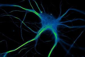 Grace Isabella Hallinan - cultured embryonic mouse hippocampal neurons - Indiana University