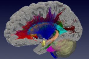 Michiel Kleinnijenhuis - Oxford Centre for Functional MRI of the Brain
