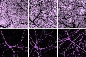 Nathanael Lee - Cherry Blossoms and Neurons - Georgetown University