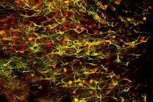 Mate Marosi and Csaba Csupernyak - Fireworks of the brain - Institute of Experimental Medicine-HAS and Femtonics Ltd.)