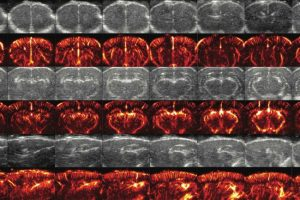 Alan Urban - Is brain vasculature more important than neurons? - INSERM