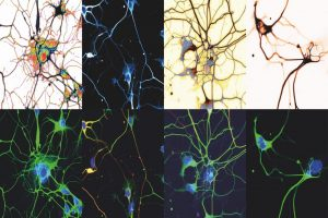 Mark Verheijen - Spinal neurons in a dish - University Medical Center Utrecht